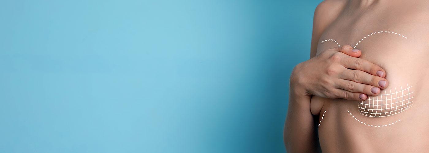 Augmentation mammaire par prothèses à Paris - Marais Esthétique