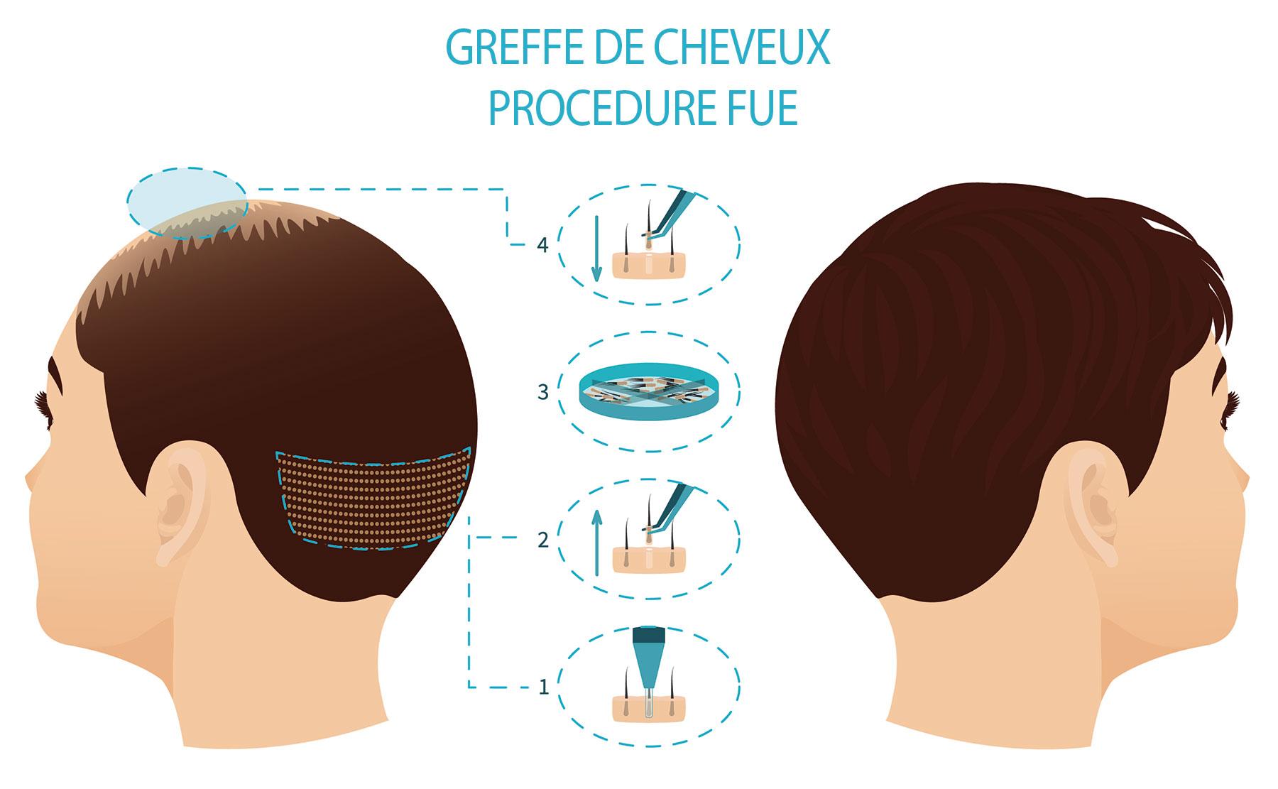 Greffe de cheveux à Paris - FUE Marais Esthétique
