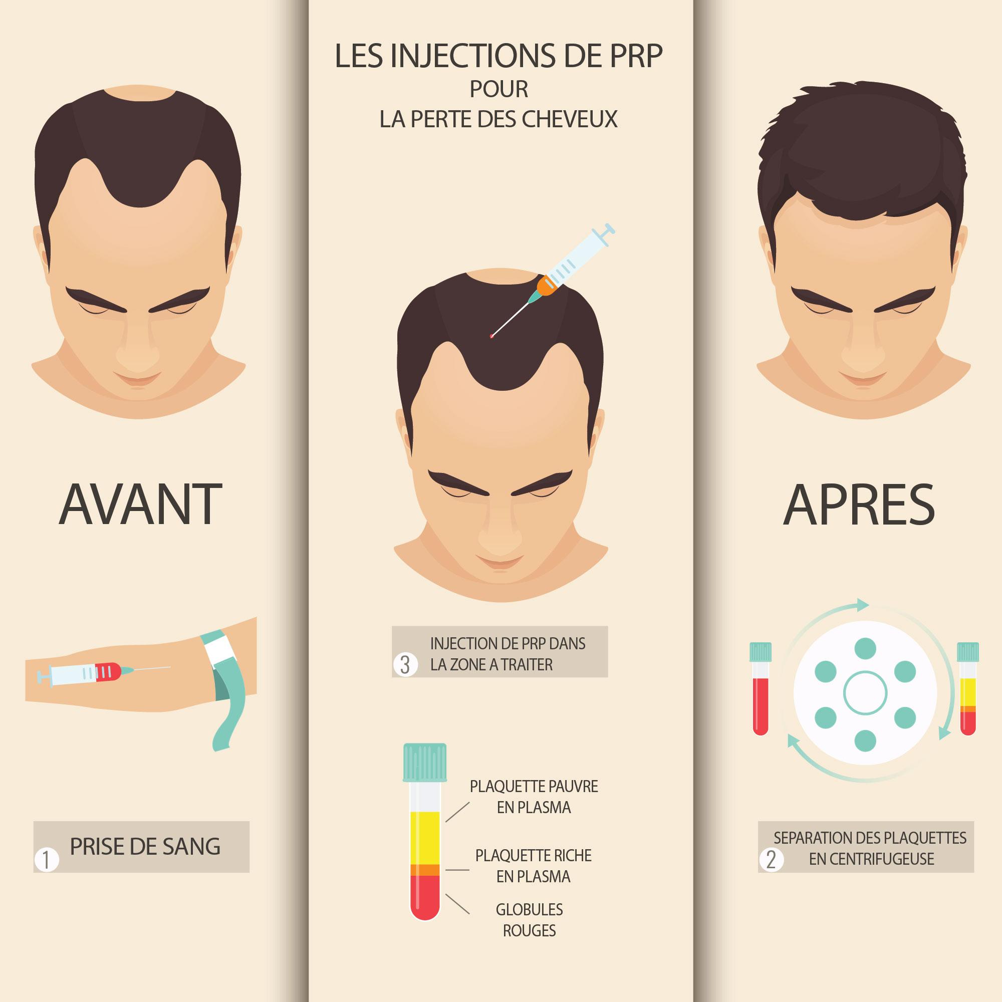 Injection PRP cheveux Paris - Marais Esthétique